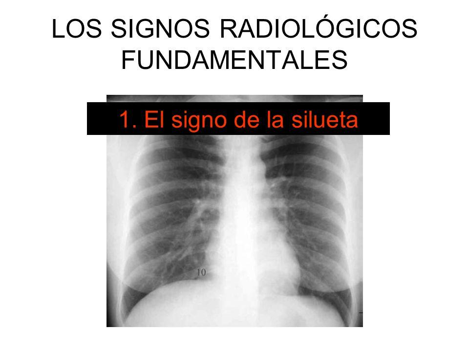LOS SIGNOS RADIOLÓGICOS FUNDAMENTALES