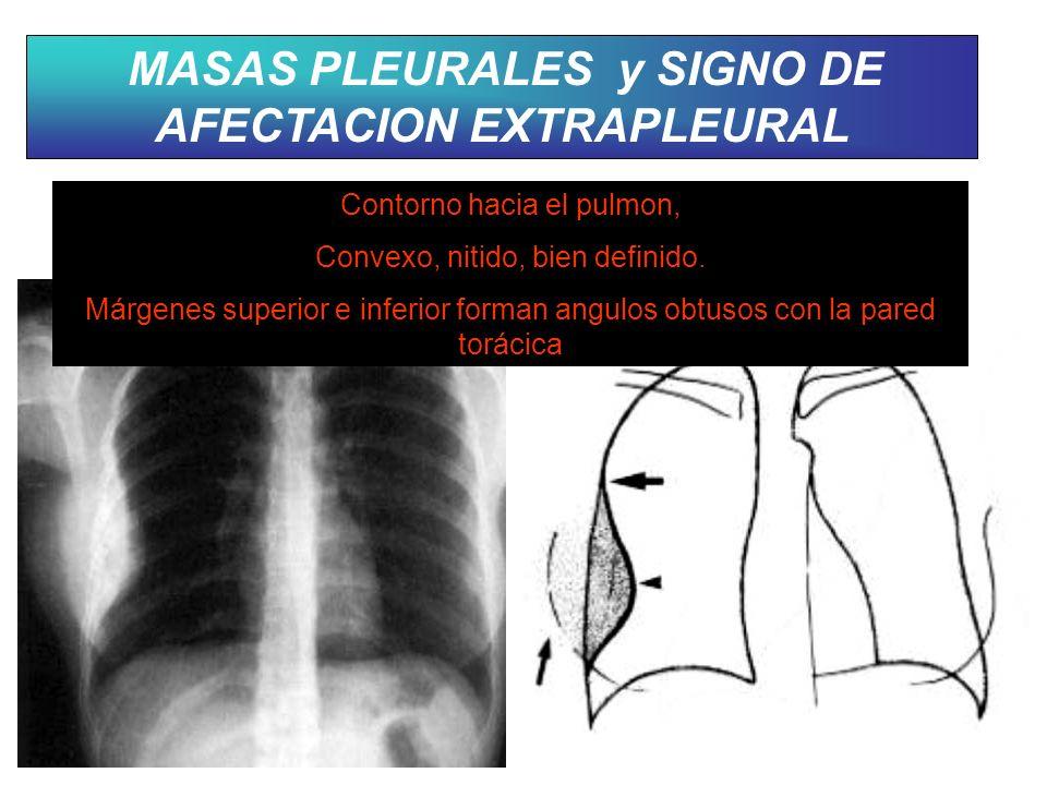 MASAS PLEURALES y SIGNO DE AFECTACION EXTRAPLEURAL