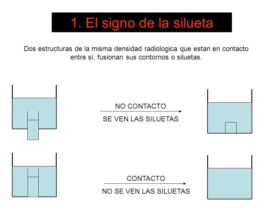 1. El signo de la siluetaDos estructuras de la misma densidad radiologica que estan en contacto entre sí, fusionan sus contornos o siluetas.