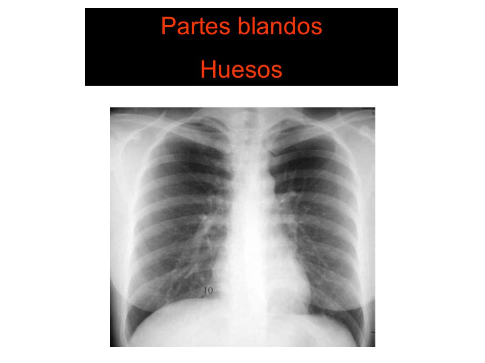 Partes blandos Huesos SISTEMA DE LECTURA 1. Pared Torácica