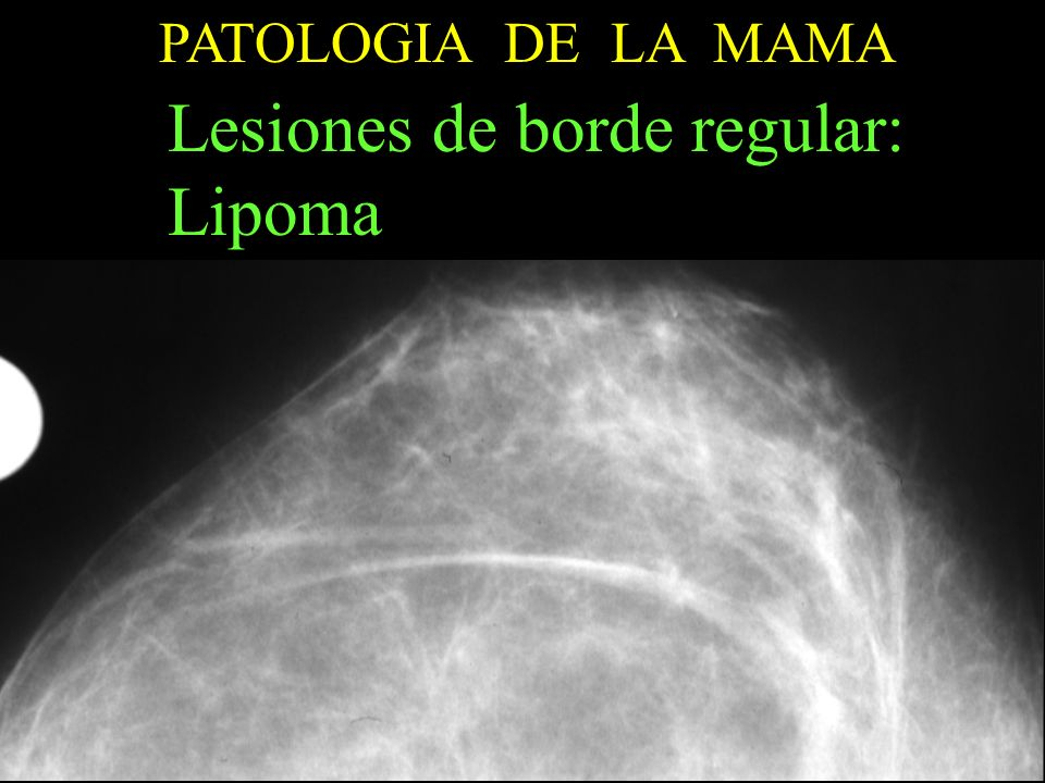 Lesiones de borde regular: Lipoma