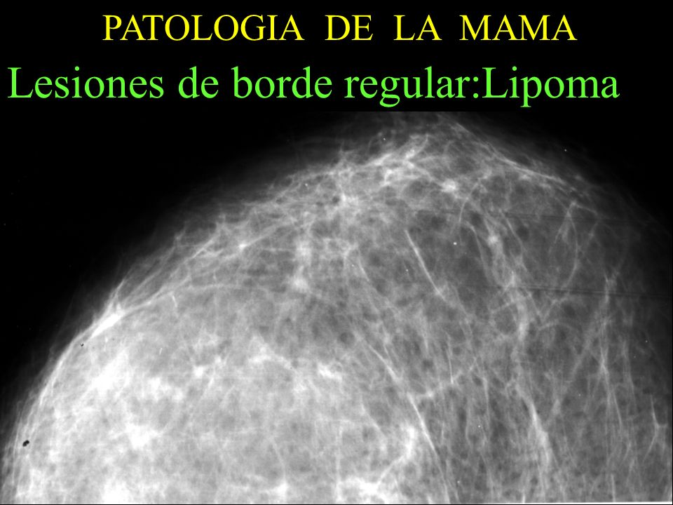 Lesiones de borde regular:Lipoma
