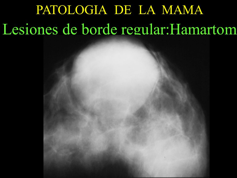 Lesiones de borde regular:Hamartoma