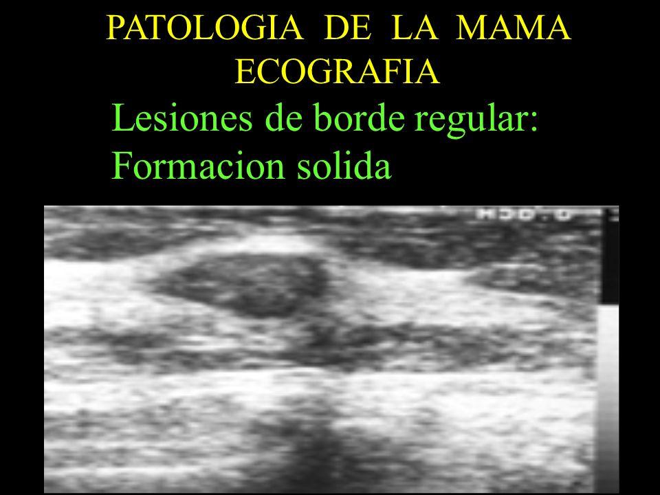 Lesiones de borde regular: Formacion solida