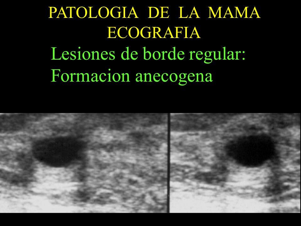 Lesiones de borde regular: Formacion anecogena