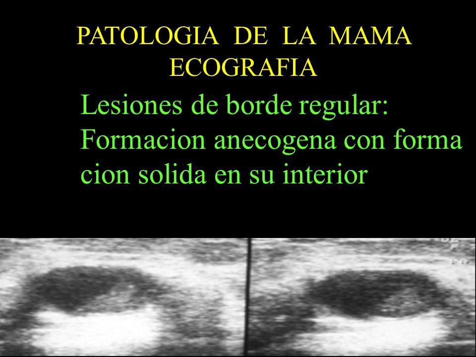 Lesiones de borde regular: Formacion anecogena con forma
