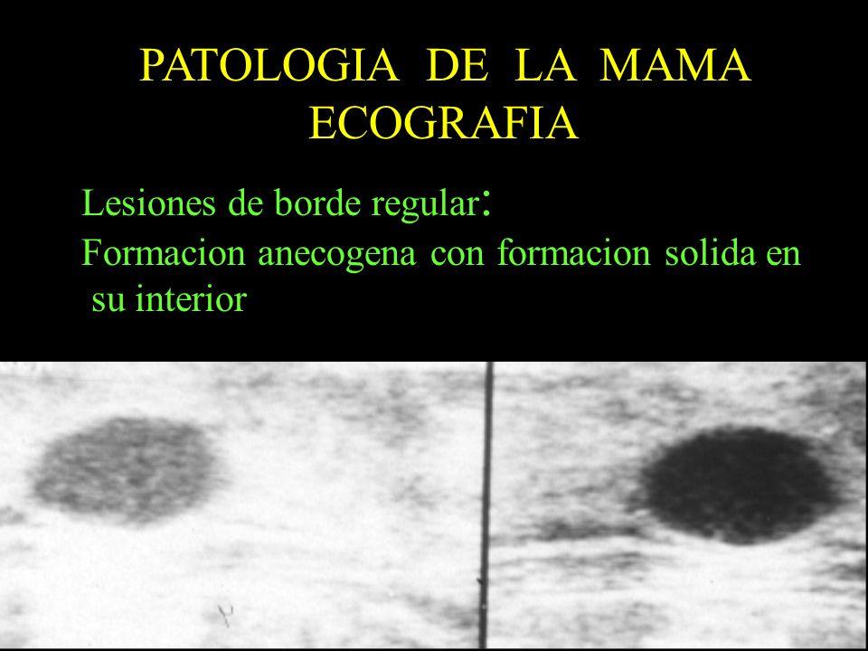 PATOLOGIA DE LA MAMA ECOGRAFIA Lesiones de borde regular: