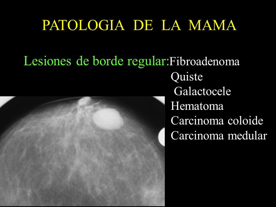 PATOLOGIA DE LA MAMA Lesiones de borde regular:Fibroadenoma Quiste