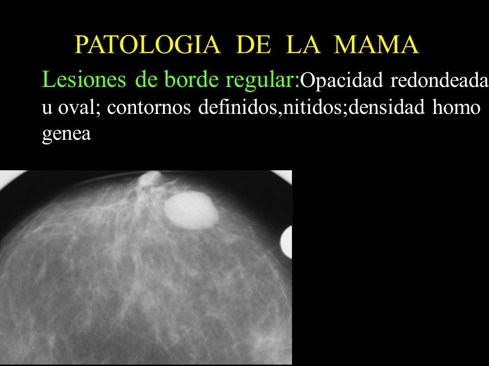 PATOLOGIA DE LA MAMA Lesiones de borde regular:Opacidad redondeada