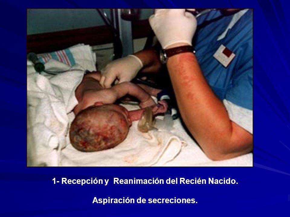 1- Recepción y Reanimación del Recién Nacido.