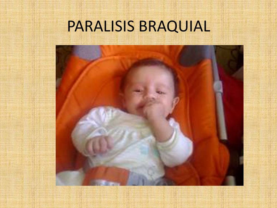 PARALISIS BRAQUIAL