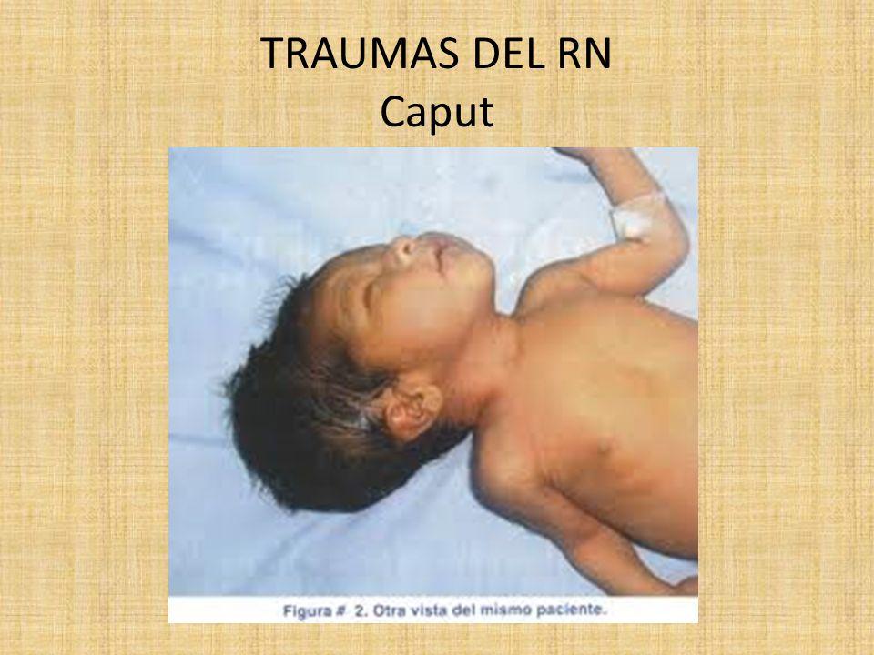 TRAUMAS DEL RN Caput