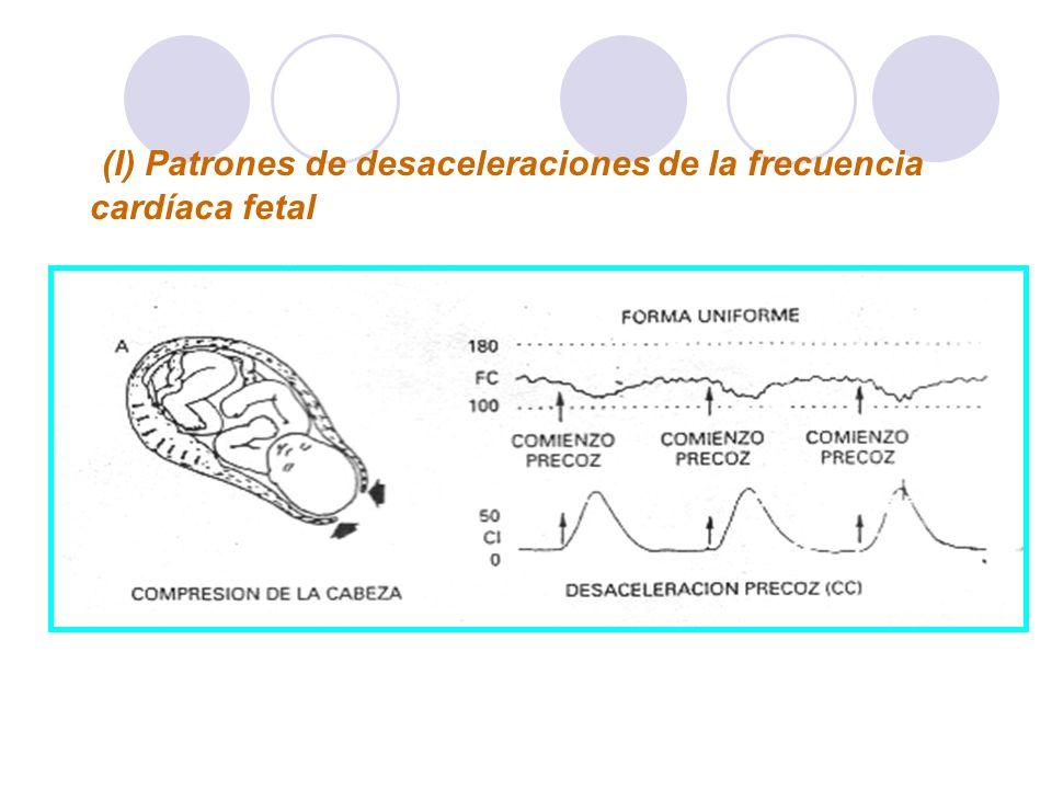 (I) Patrones de desaceleraciones de la frecuencia cardíaca fetal