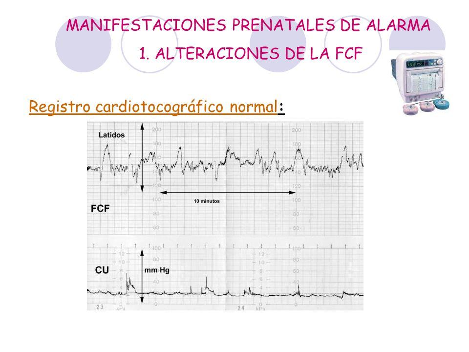 MANIFESTACIONES PRENATALES DE ALARMA 1. ALTERACIONES DE LA FCF