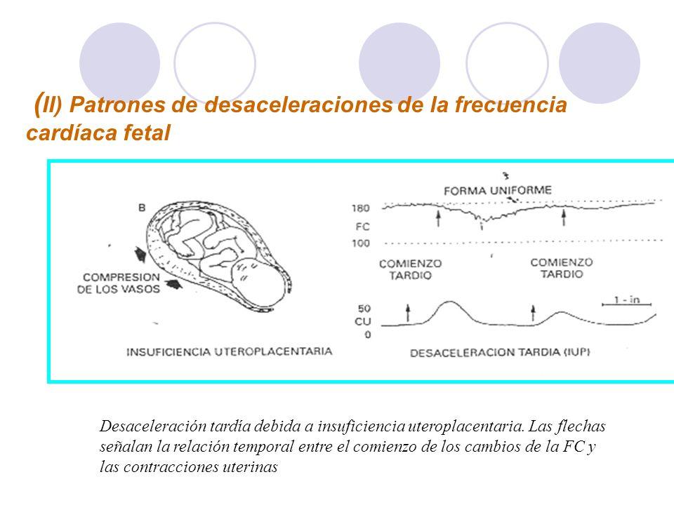 (II) Patrones de desaceleraciones de la frecuencia cardíaca fetal