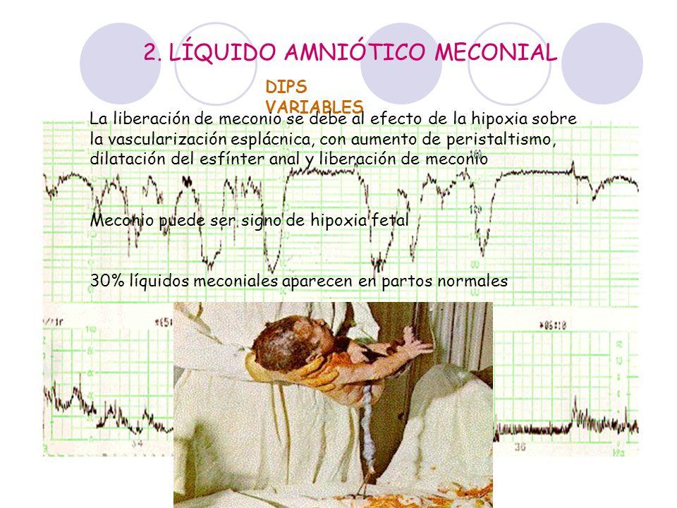 2. LÍQUIDO AMNIÓTICO MECONIAL