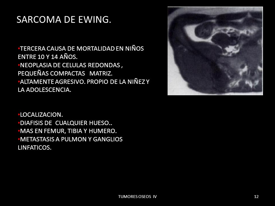 SARCOMA DE EWING. TERCERA CAUSA DE MORTALIDAD EN NIÑOS ENTRE 10 Y 14 AÑOS. NEOPLASIA DE CELULAS REDONDAS , PEQUEÑAS COMPACTAS MATRIZ.