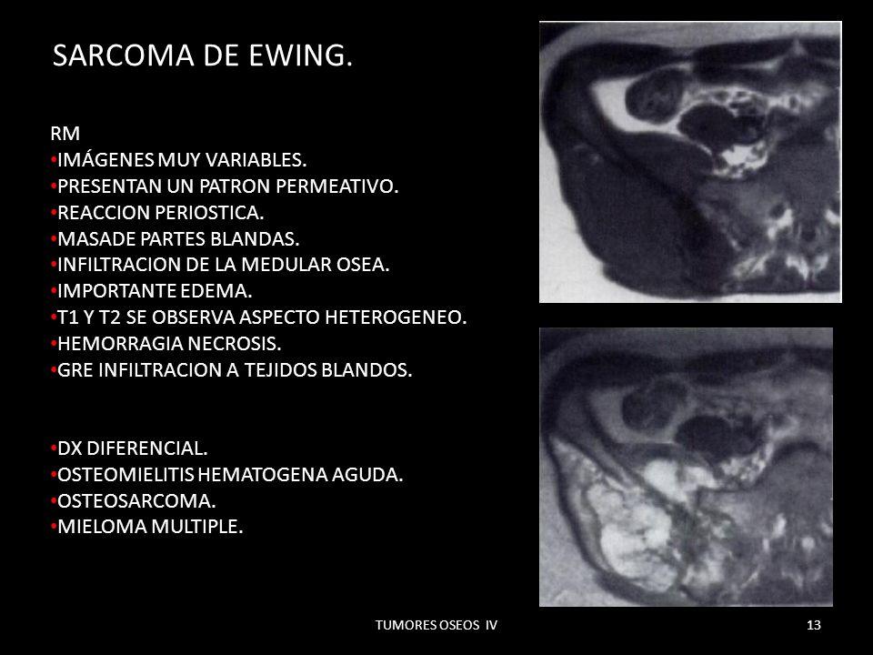 SARCOMA DE EWING. RM IMÁGENES MUY VARIABLES.