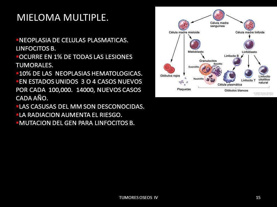 MIELOMA MULTIPLE. NEOPLASIA DE CELULAS PLASMATICAS. LINFOCITOS B.