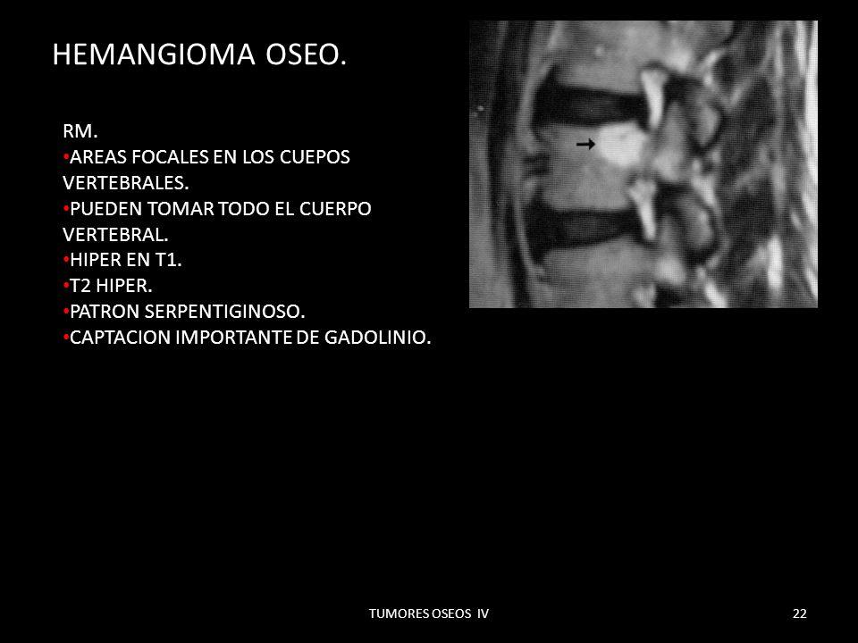 HEMANGIOMA OSEO. RM. AREAS FOCALES EN LOS CUEPOS VERTEBRALES.