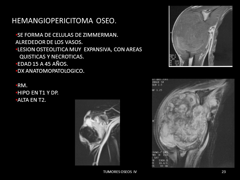 HEMANGIOPERICITOMA OSEO.