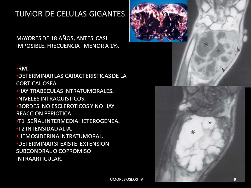 TUMOR DE CELULAS GIGANTES.