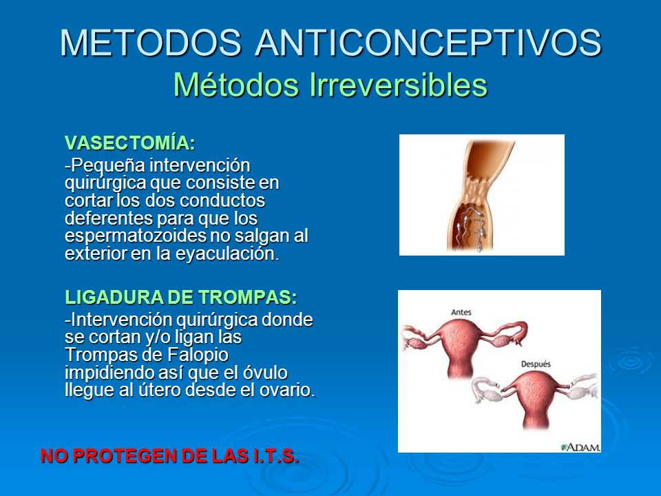 METODOS ANTICONCEPTIVOS Métodos Irreversibles