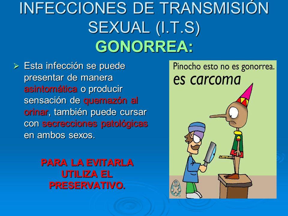 INFECCIONES DE TRANSMISIÓN SEXUAL (I.T.S) GONORREA: