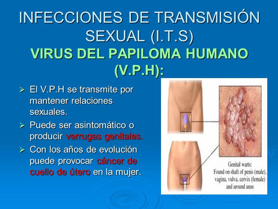 INFECCIONES DE TRANSMISIÓN SEXUAL (I. T