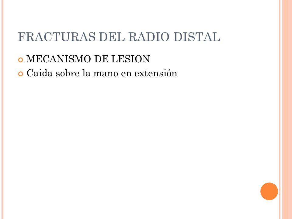FRACTURAS DEL RADIO DISTAL