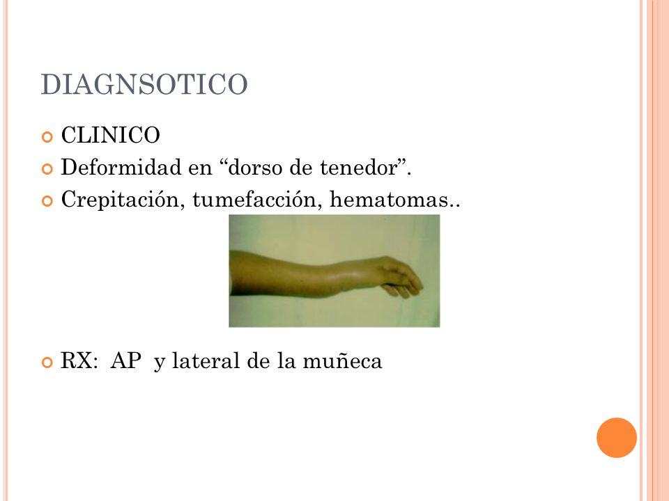 DIAGNSOTICO CLINICO Deformidad en dorso de tenedor .