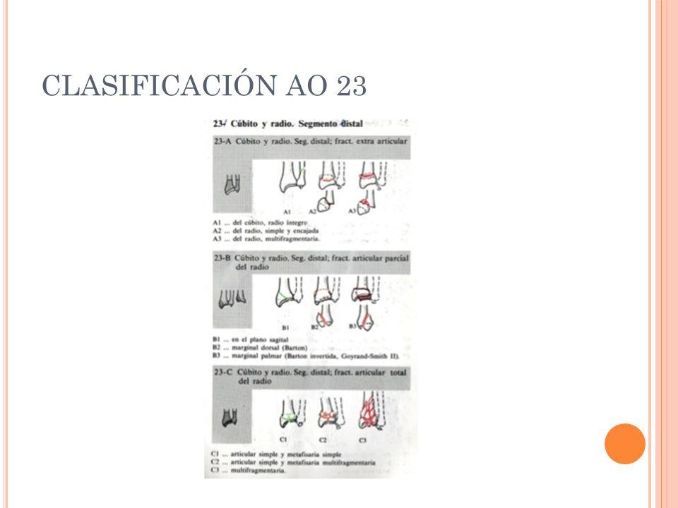 CLASIFICACIÓN AO 23