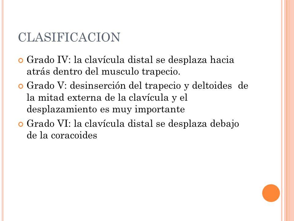 CLASIFICACION Grado IV: la clavícula distal se desplaza hacia atrás dentro del musculo trapecio.
