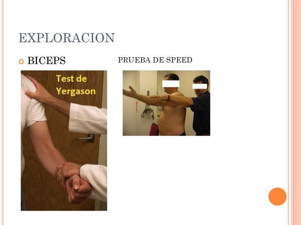 EXPLORACION BICEPS PRUEBA DE SPEED