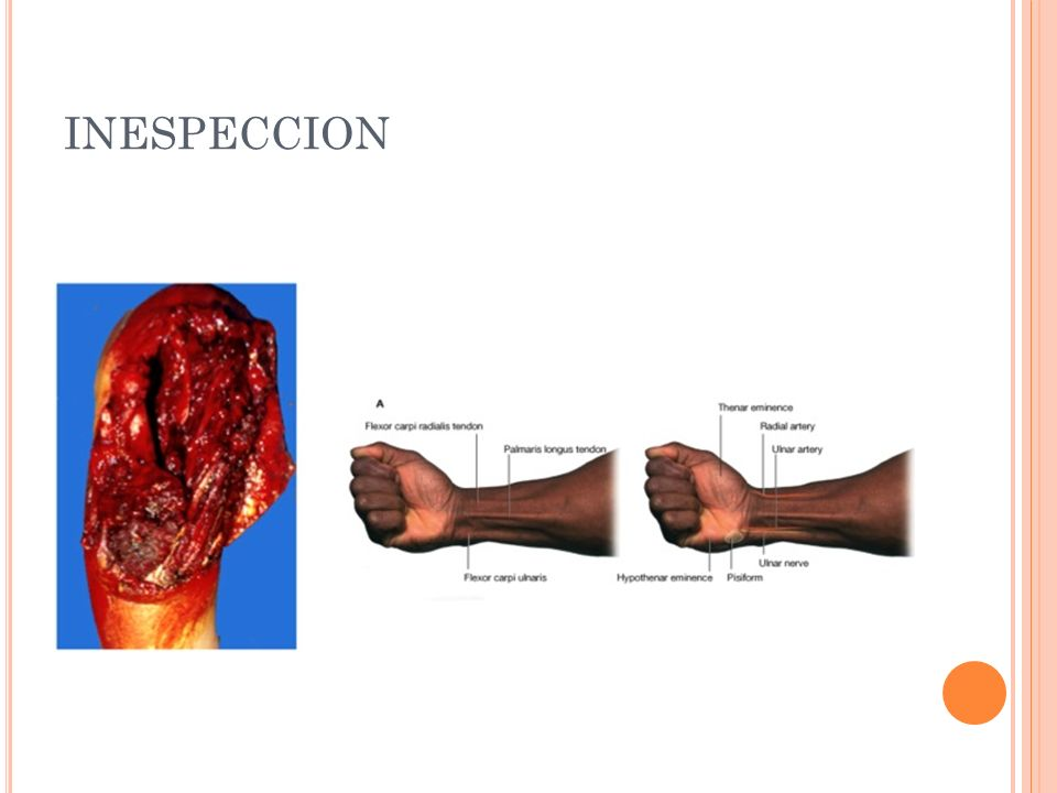 INESPECCION