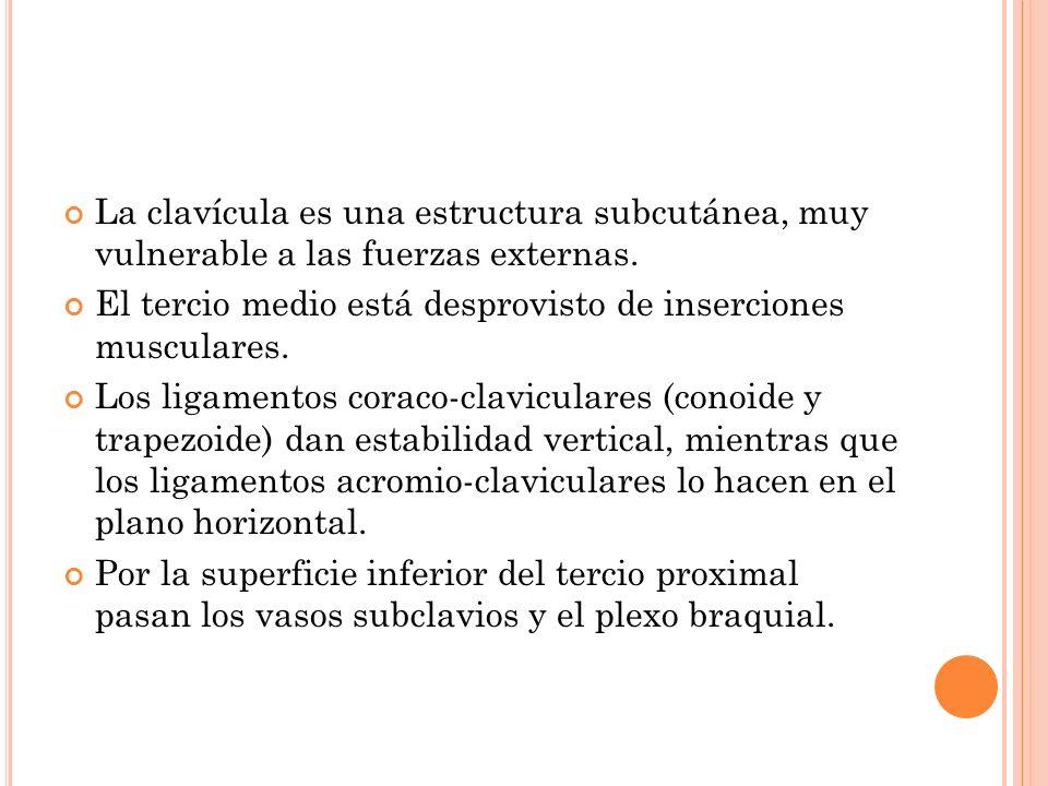 La clavícula es una estructura subcutánea, muy vulnerable a las fuerzas externas.