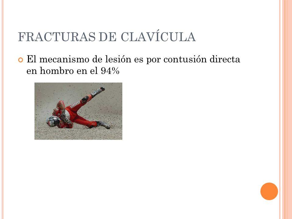 FRACTURAS DE CLAVÍCULA