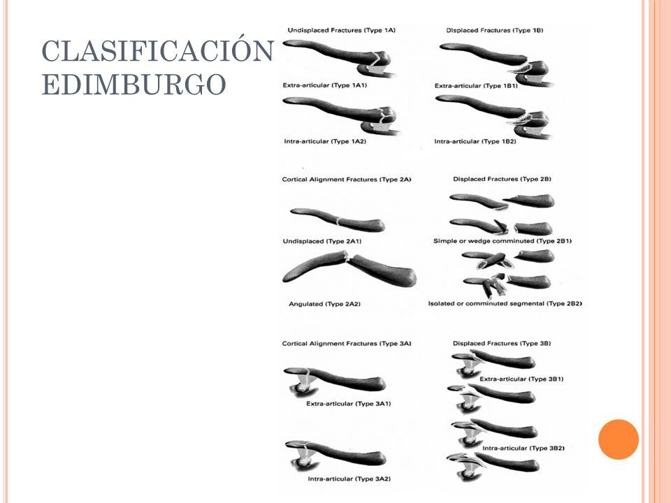 CLASIFICACIÓN EDIMBURGO