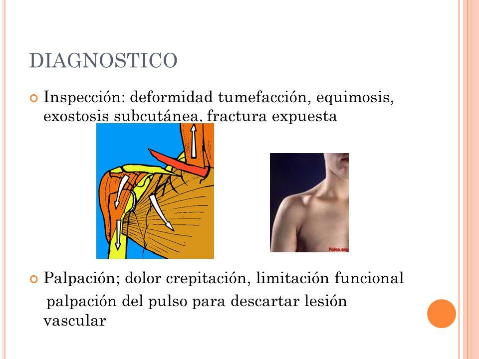 DIAGNOSTICO Inspección: deformidad tumefacción, equimosis, exostosis subcutánea, fractura expuesta.