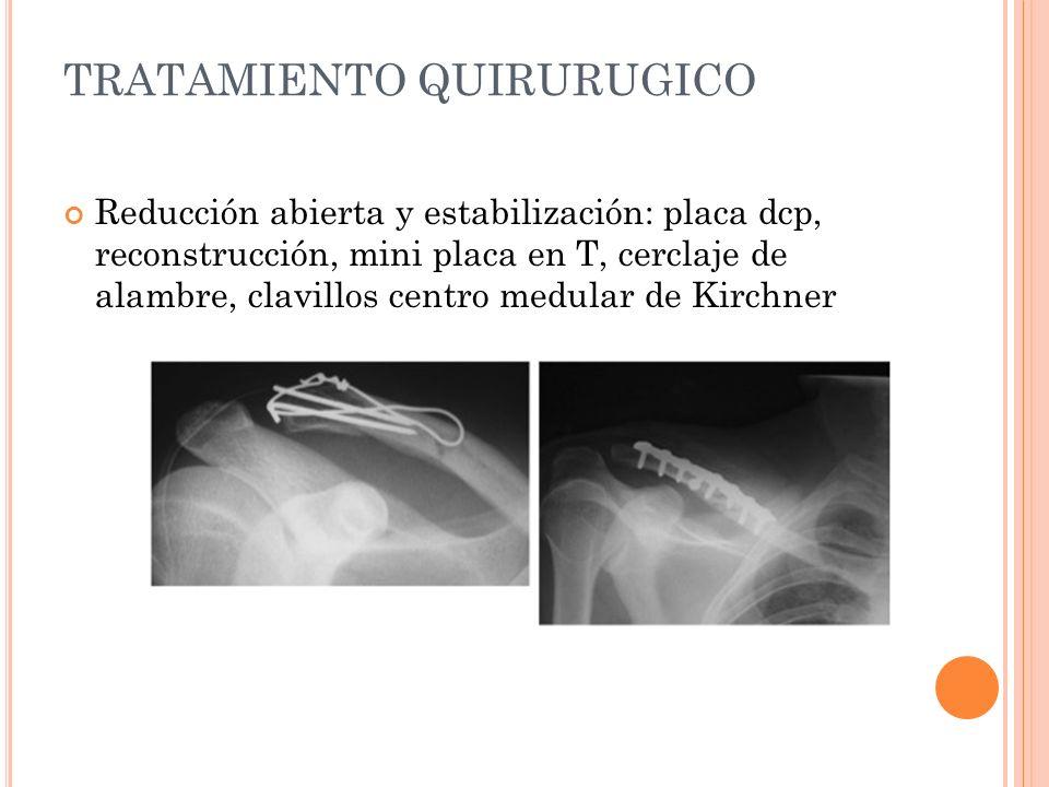 TRATAMIENTO QUIRURUGICO