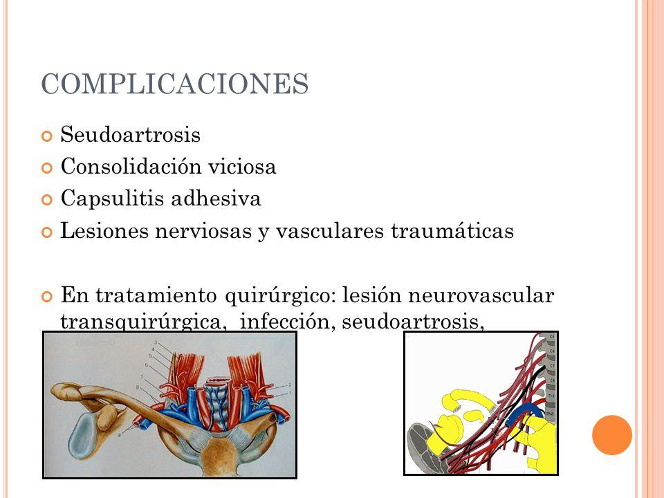 COMPLICACIONES Seudoartrosis Consolidación viciosa Capsulitis adhesiva