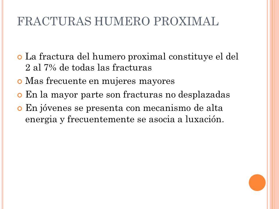 FRACTURAS HUMERO PROXIMAL