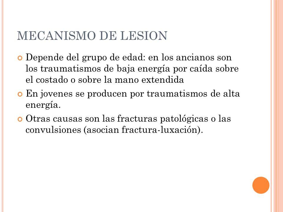 MECANISMO DE LESION