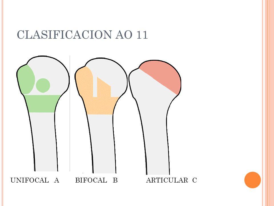 CLASIFICACION AO 11 UNIFOCAL A BIFOCAL B ARTICULAR C