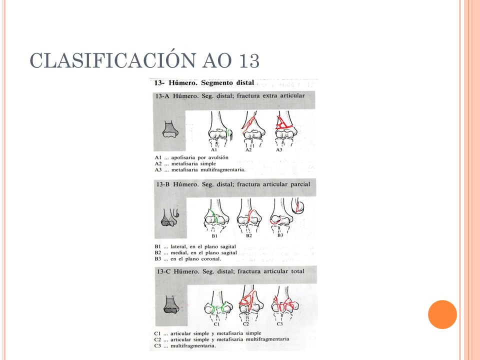 CLASIFICACIÓN AO 13