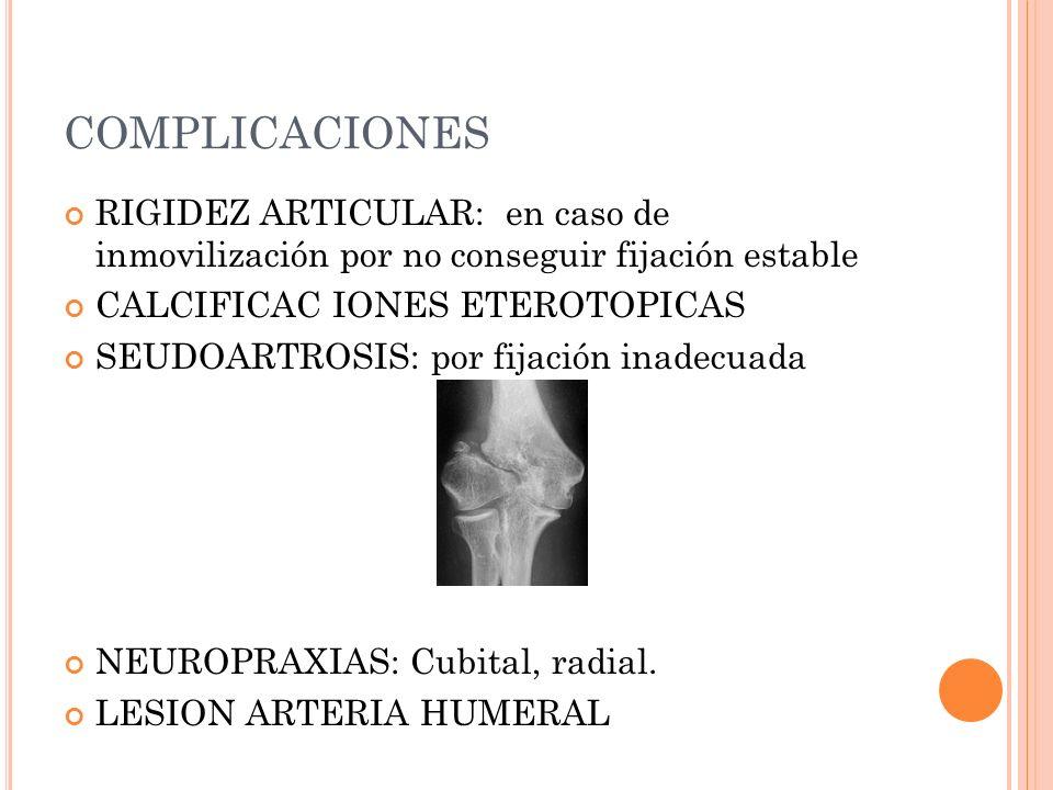 COMPLICACIONES RIGIDEZ ARTICULAR: en caso de inmovilización por no conseguir fijación estable. CALCIFICAC IONES ETEROTOPICAS.