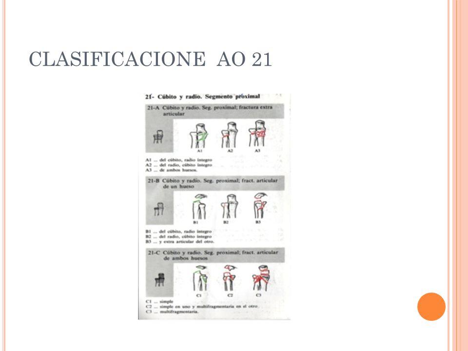 CLASIFICACIONE AO 21