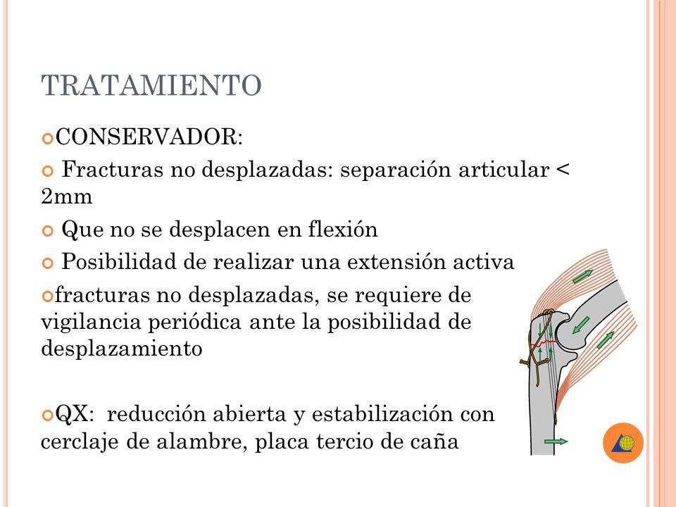 TRATAMIENTO CONSERVADOR: