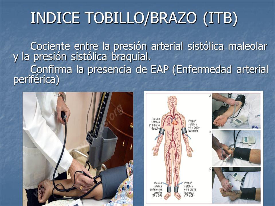 INDICE TOBILLO/BRAZO (ITB)