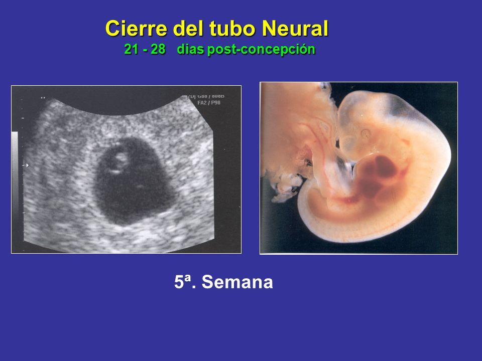 Cierre del tubo Neural 21 - 28 dias post-concepción